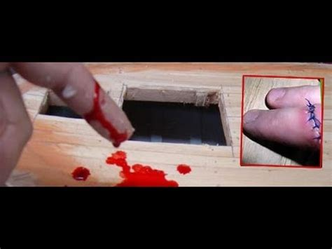 imagenes emos q se cortan se corta el dedo me 209 ique por dinero youtube