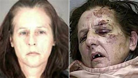 meth images images meth addicts before and after photos cbsumter