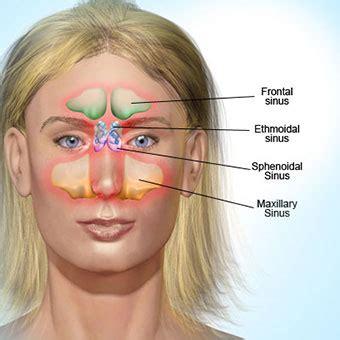 Obat Nasonex 18 symptoms of sinus infection sinusitis contagious