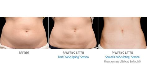 coolsculpting results in just one session