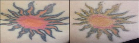 red tattoo removal vanish laser removal and skin aesthetics fort