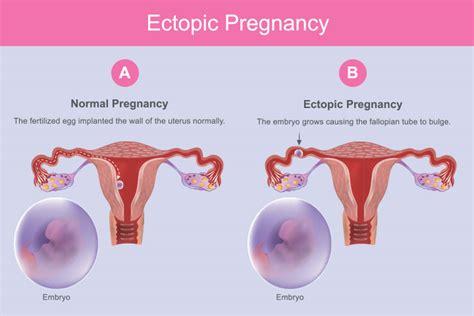 ectopic pregnancy  symptoms  treatment