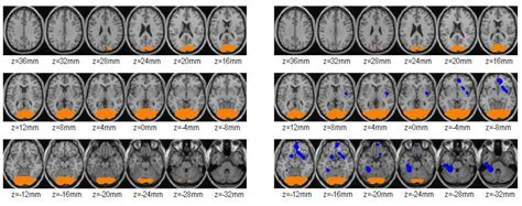 Foods You Crave Detoxing From Herion by Brain Scan Study Shows Cocaine Abusers Can