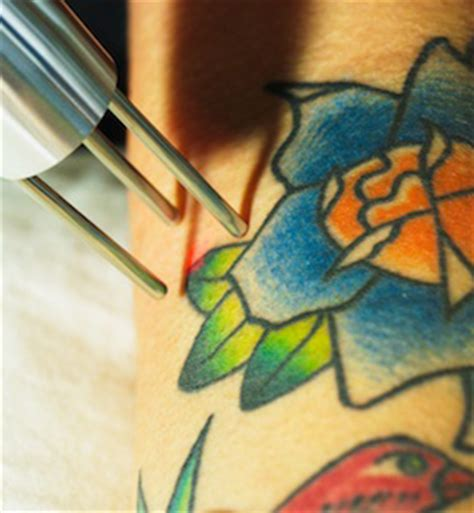 tattoo removal industry start laser removal business make money with