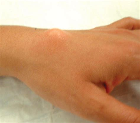 Handgelenk Bilder by Ganglion Cysts Causes Symptoms And Treatment The
