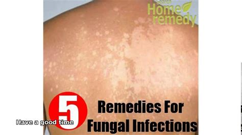 skin infection home remedy fungal skin infection treatment