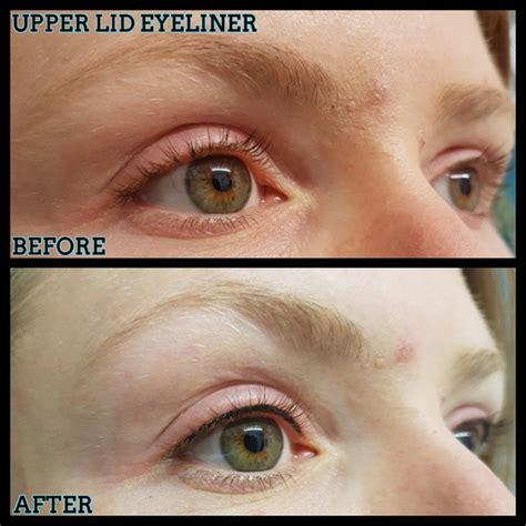 laser tattoo removal glasgow semi permanent makeup removal glasgow saubhaya makeup