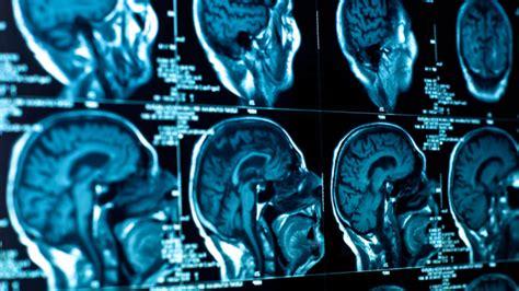 test quoziente intellettivo bambini fluoruro intelligenza i 39 studi mostrano quello