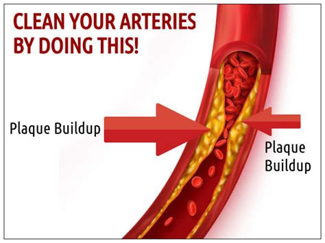 Artery Detox by Clean Your Arteries Do This Boldsky