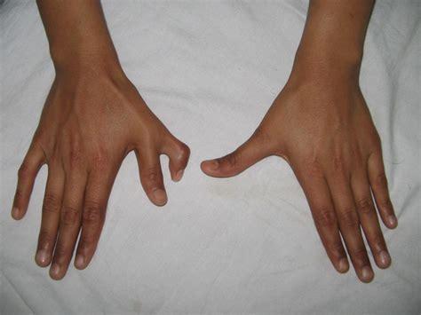 imagenes de niños que nacen pegados cada vez nacen m 225 s beb 233 s con 6 dedos o m 225 s para teclear m