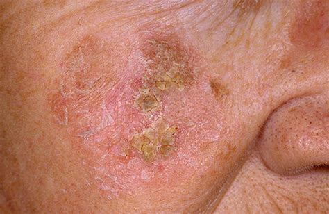 scaly skin disease information