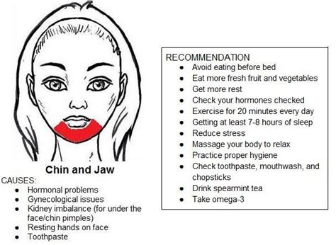 Acne Chin Detox by 25 Best Ideas About Chin Breakouts On Pimple