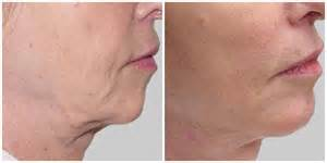 sagging jowls treatments for sagging jowls jowl reduction robot facelift claims to reduce sagging jowls and beat