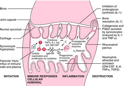 Rã Sumã Definition Purulent Synovitis Definition Of Purulent Synovitis By Dictionary
