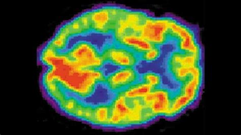young nfl players  brain injuries voxitatis blog