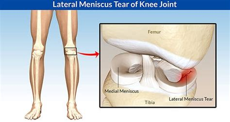 dolore al ginocchio laterale interno senza gonfiore lateral meniscus tear symptoms diagnosis and treatment