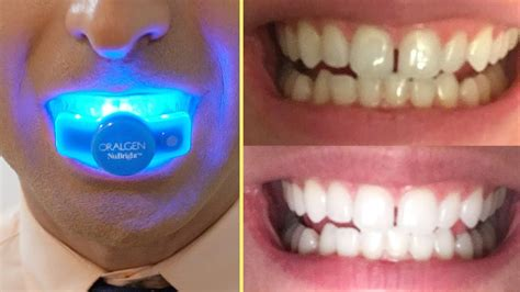instantly whiten  teeth  home   home
