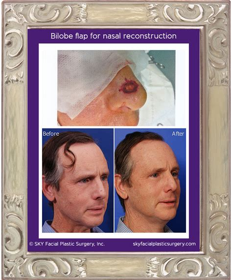reconstruction after mohs surgery books mohs reconstruction in san diego after skin cancer sky