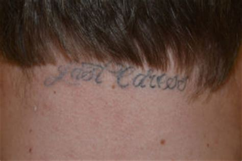 tattoo removal los angeles ca painless removal saline removal in los