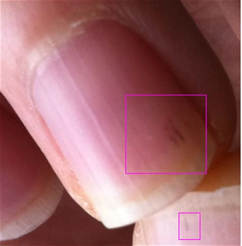 dark line on fingernail black spot under toenail melanoma quotes