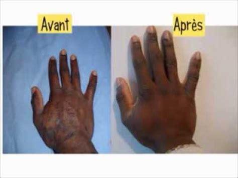 comment soigner un qui a de l eczema la r 233 ponse