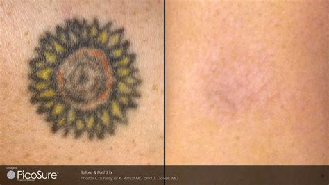 tattoo removal sun exposure picosure removal portland or key laser center