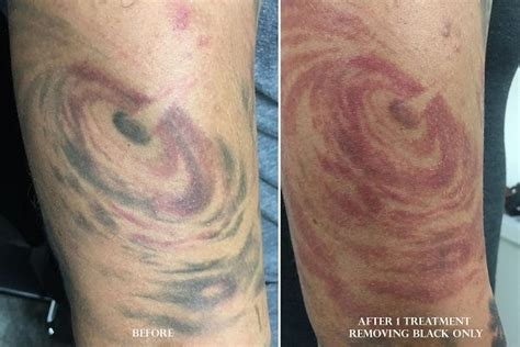 tattoo removal pictures stages before after photos laser tattoo removal