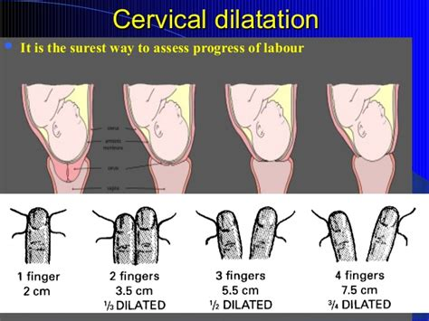 the gallery for gt cervix dilation chart labor