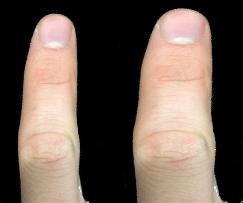 how to finger anaesthesia makes us feel fat not big