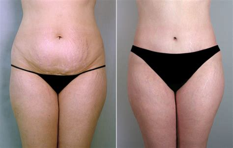 when can you have a tummy tuck after c section why choose tummy tuck surgery medcare spainmedcare spain