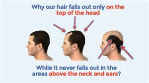 best hair loss treatment how to stop hair loss naturally