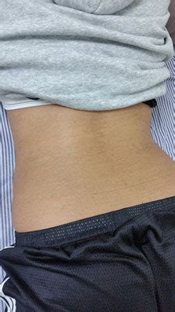 tattoo removal nz photo gallery ammara removal and cosmetic laser