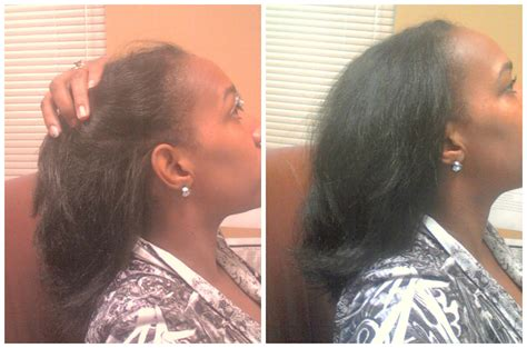 Shedding Hair by What S The Difference Between Shedding And Breakage