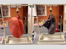 Smokers Lungs Vs Healthy Lungs | Q8 ALL IN ONE - The Blog Lung Cancer From Smoking Cigarettes