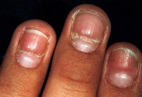 Nail Problems by What Causes Fingernail Ridges What Causes This