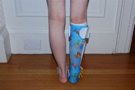 leg brace and here s another view images frompo