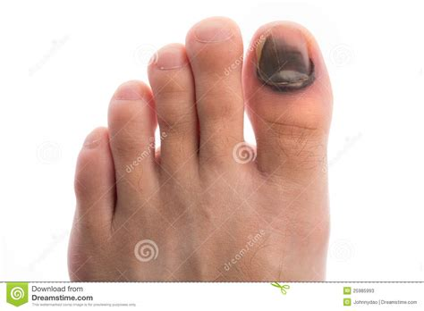 toenail bleeding injure toenail stock photos image 25985993
