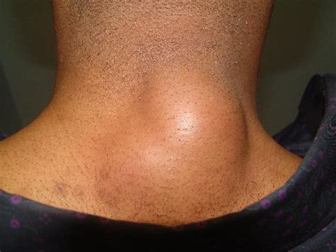 has soft lump on side lumps and bumps at back or side of neck small large soft ehealthstar