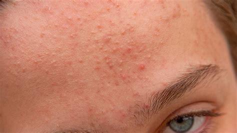ab wann akne hormonal acne treatment and prevention jess