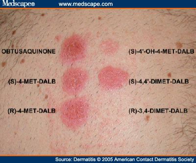 pach test patch test results pictures photos