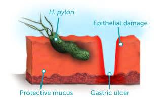 Can H Pylori Cause Blood In Stool by Helicobacter Pylori H Pylori The Commonest Cause Of