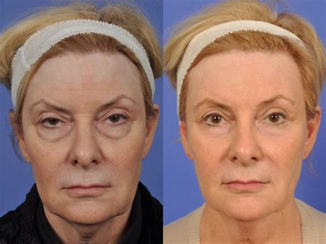45 year old woman before and after surgery w cosmetic surgery 174 blepharoplasty before and after photo