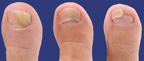 nail separated from nail bed how fungus can cause nail separation inlife healthcare