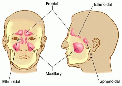 sinus diagram aggarwal