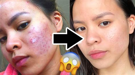 How To Get Rid Of Acne Scars by How To Really Get Rid Of Acne Scars Fast