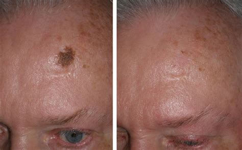 covering a large scar on forehead mole removal gallery richmond va cosmetic facial surgery