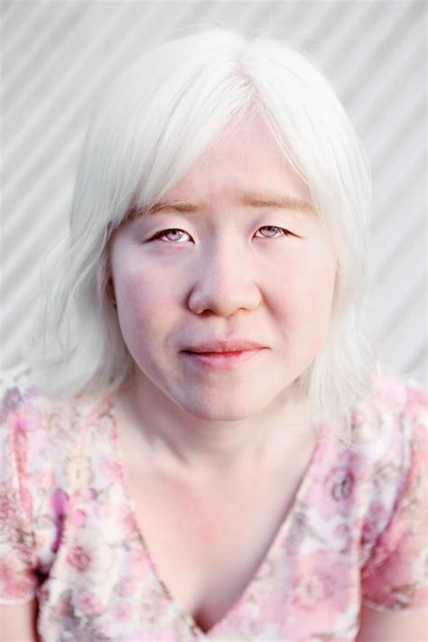 albino hair feel albino people on pinterest albinism little miss