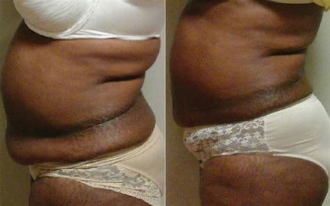 lipo light body contouring laser liposuction before after photos lightrx face