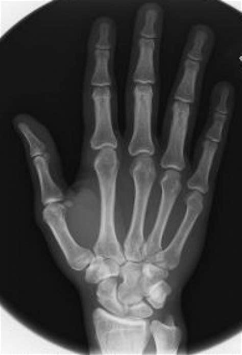Cicle mitjà: Els ossos de la mà.