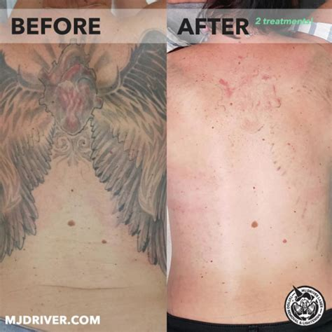 laser tattoo removal gold coast mj driver laser